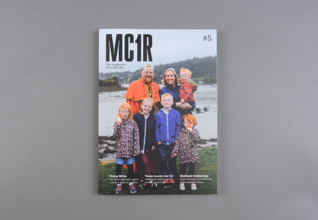 MC1R # 05